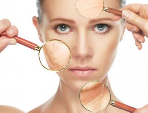 Cómo eliminar el melasma de la piel